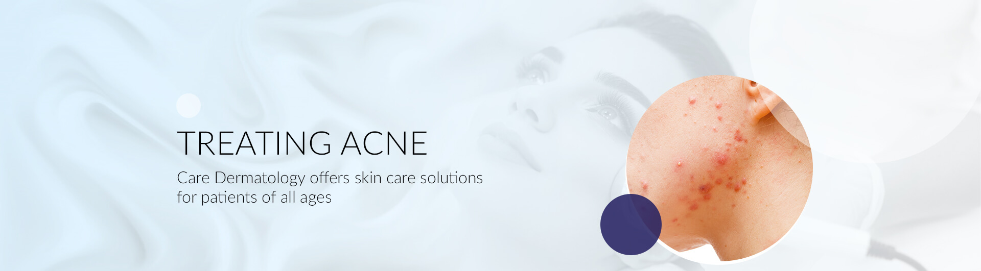 Treating Acne in Florida