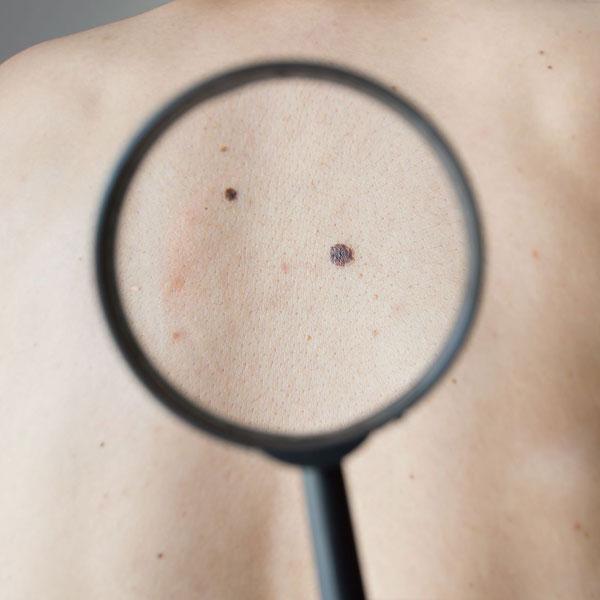Mole Treatment In Florida