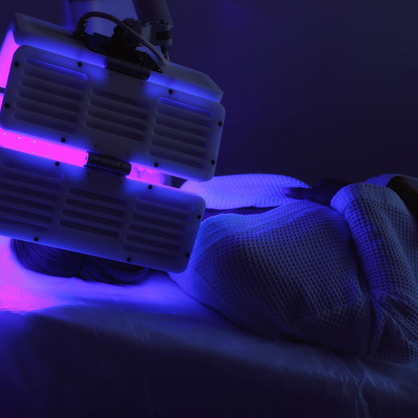 Photodynamic Therapy Treatment