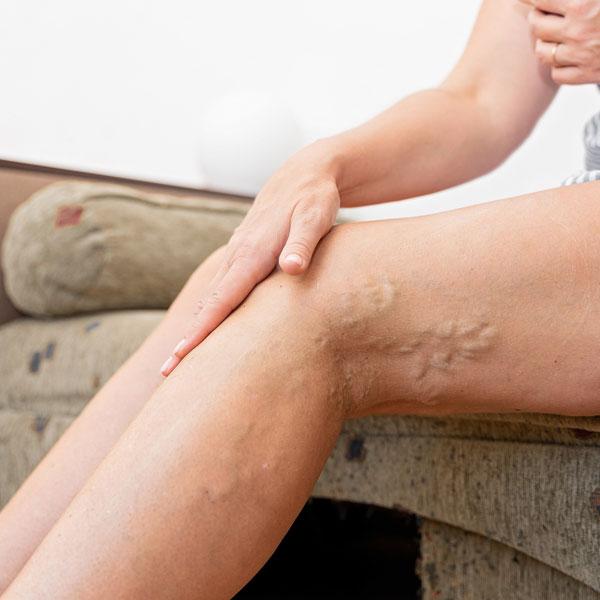 Varicose Veins Treatment In Florida