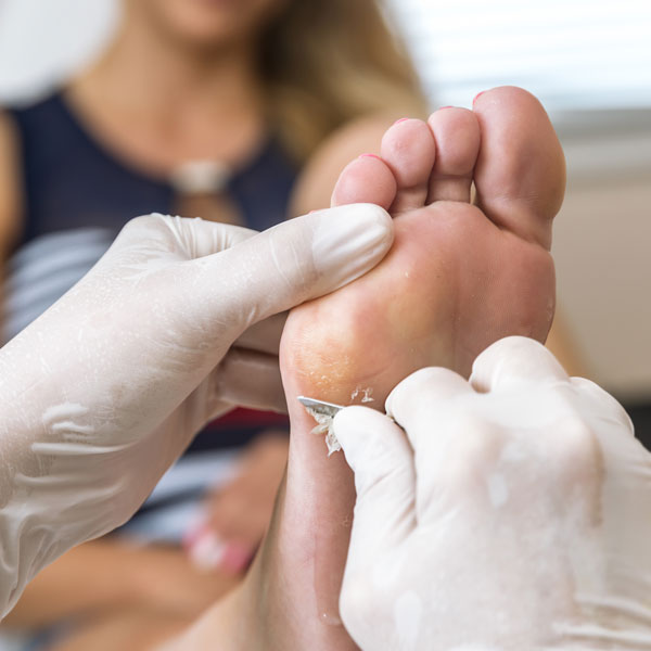 Surgical Wart Removal In Florida